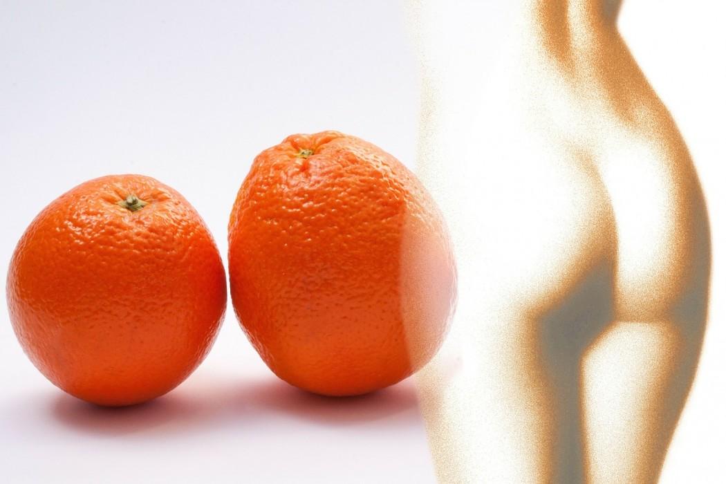 celulitis-piel-de -naranja-rockinchiclifestyle