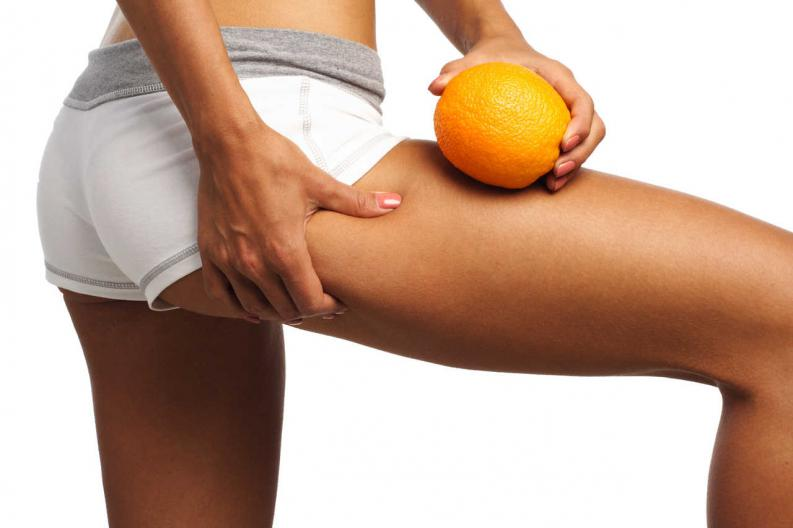 combatir-la-pie-de-naranja-celulitis