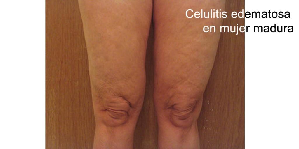 guia-definitiva-celulitis-edematosa-2