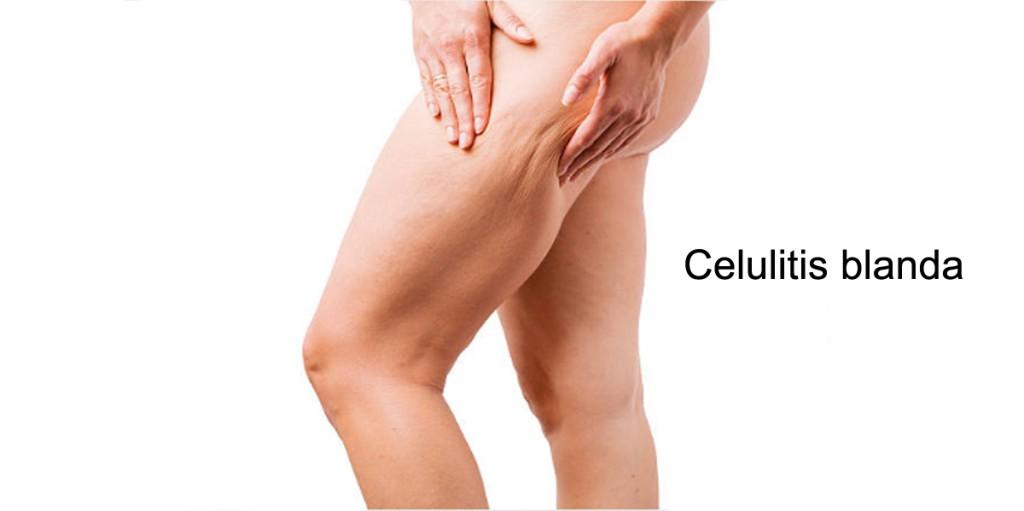 guia-definitiva-celulitis-blanda
