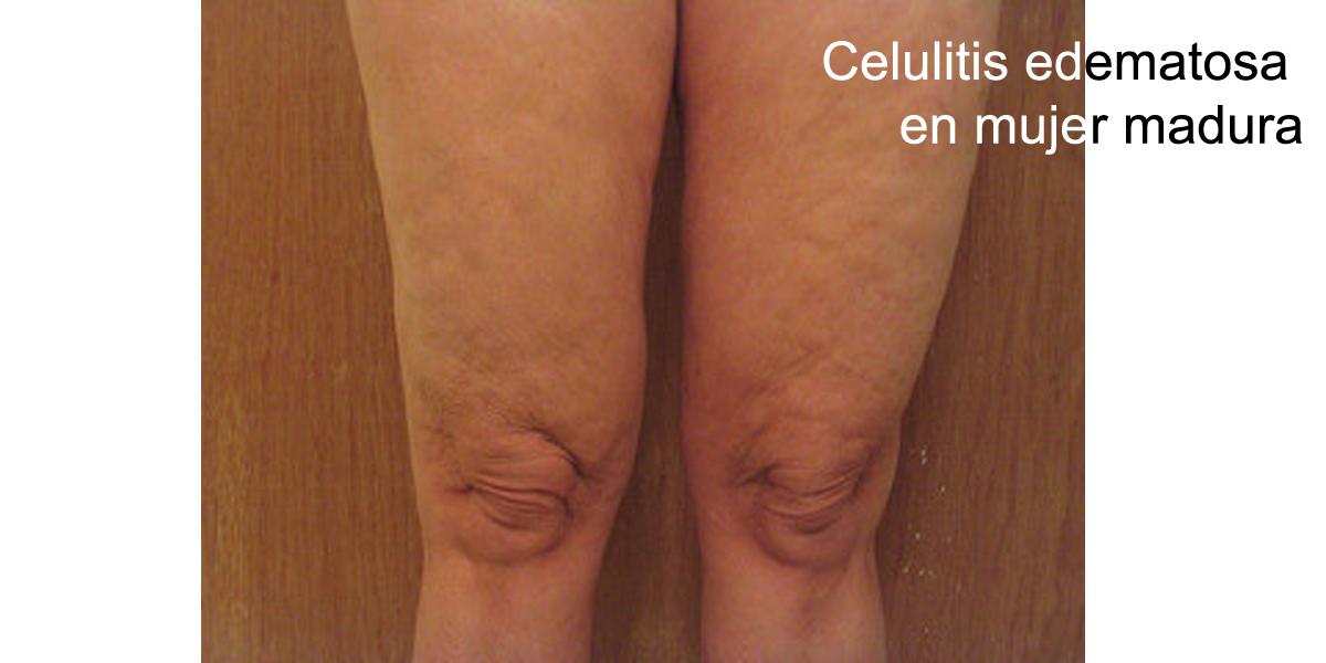 celulitis post punción