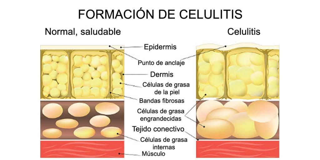 guia-definitiva-formacion-celulitis-corte-piel